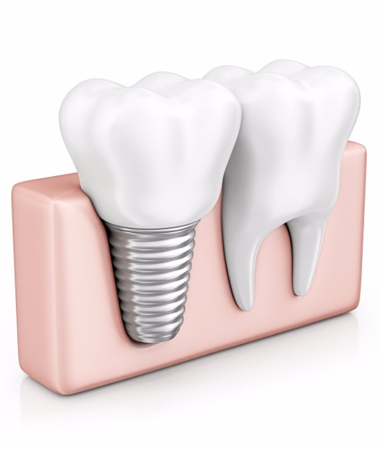 Dental Implants, Panorama Oral Surgery