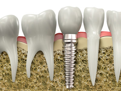 Implant Specialist Winnipeg