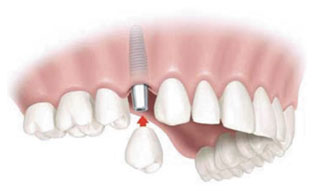 Dental Implants | Winnipeg